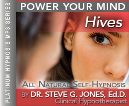 Relieve Hives Hypnosis MP3